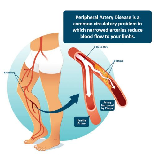 PAD - Peripheral Artery Disease diagnosis and treatment in Mission, TX
