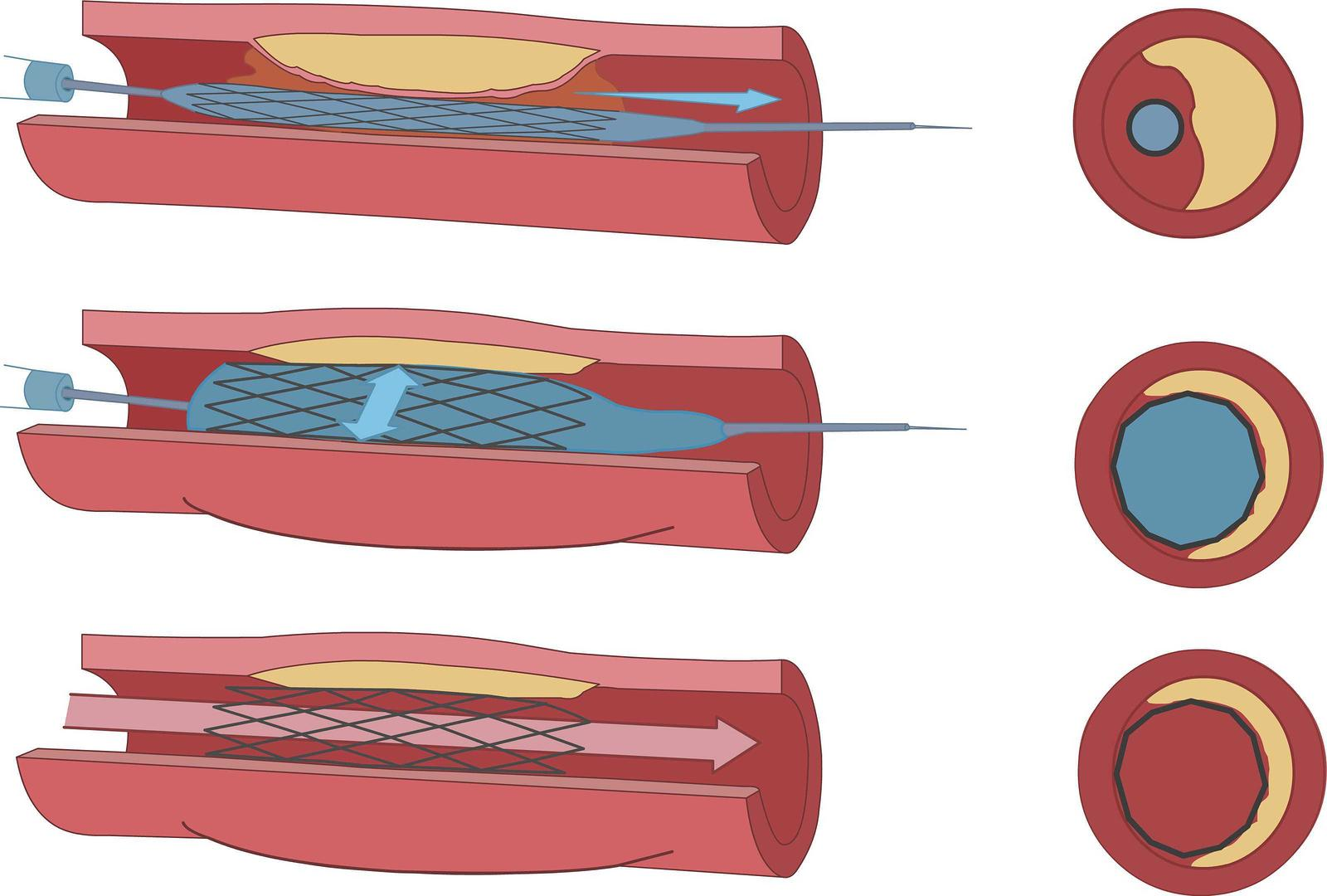Endovascular Angioplasty and Stent Example Image - Mission Vascular